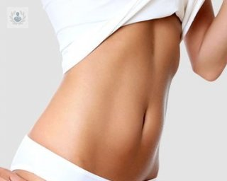 tummy tuck antes y despues