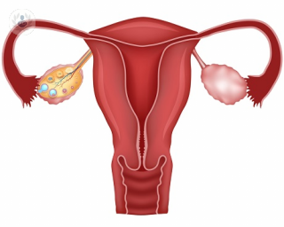 endometriosis sintomas