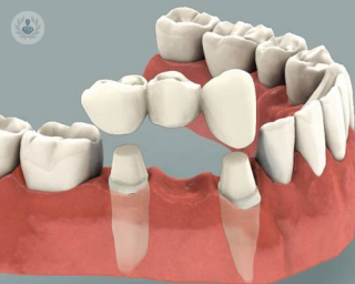 puente dental removible
