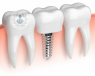 costo de mini implantes dentales