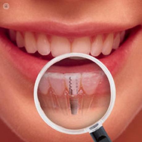 Dental cdmx implante costo