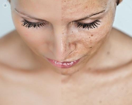 Cómo eliminar manchas en la piel? Acude al dermatólogo