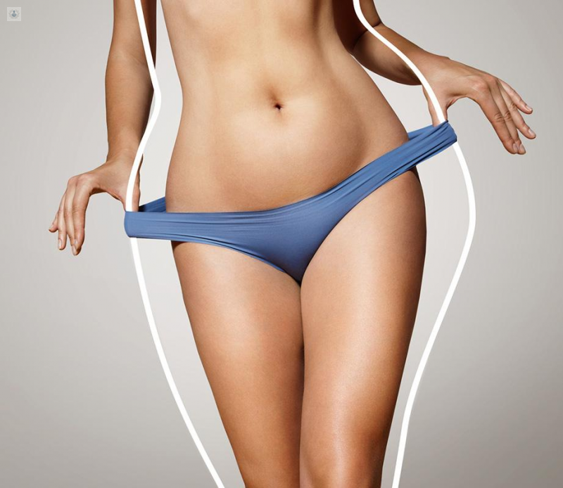 Liposucción con microinyección: ideal para un nuevo contorno corporal
