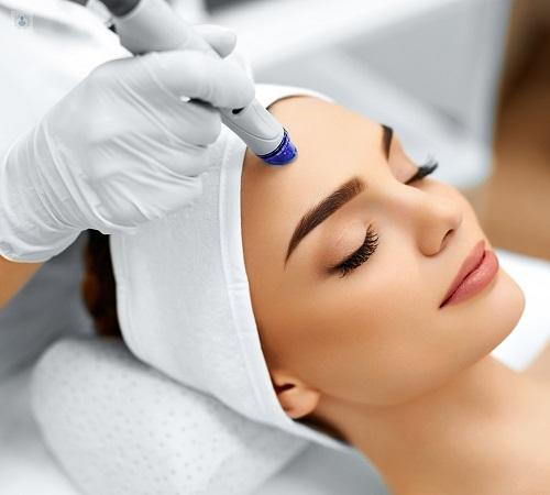tratamiento cicatrices acne guadalajara