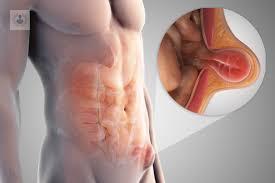 Cirugia hernia inguinal laparoscopica recuperacion
