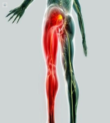 Causar piernas? el nervio entumecimiento en ciático ¿Puede ambas